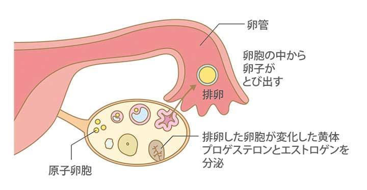 逆行性子宮腰痛